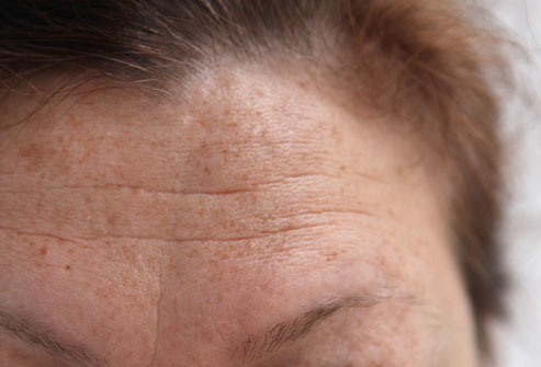 photo_of_forehead_wrinkles